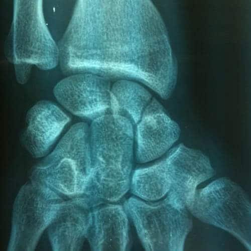 fracture scaphoide main fracture du scaphoide carpien fracture scaphoide poignet docteur laurent thomsen chirurgien main paris chirurgien poignet paris clinique drouot