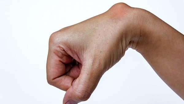 kyste synovial poignet operation kyste synovial poignet traitement kyste poignet traitement dr laurent thomsen chirurgien main paris chirurgien poignet paris clinique drouot 1