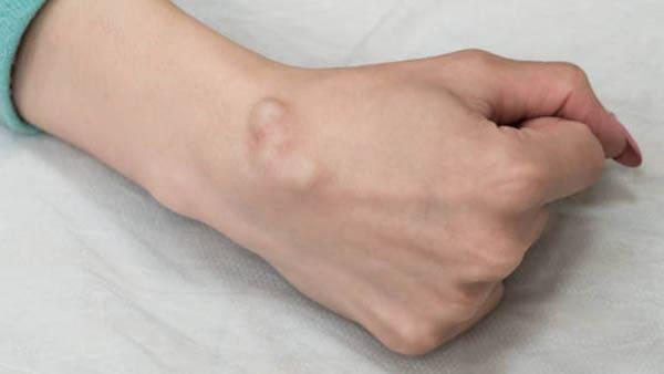 kyste synovial poignet operation kyste synovial poignet traitement kyste poignet traitement dr laurent thomsen chirurgien main paris chirurgien poignet paris clinique drouot 2