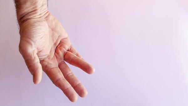 maladie de dupuytren mains maladie de dupuytren et invalidite docteur laurent thomsen chirurgien main paris chirurgien poignet paris clinique drouot 2