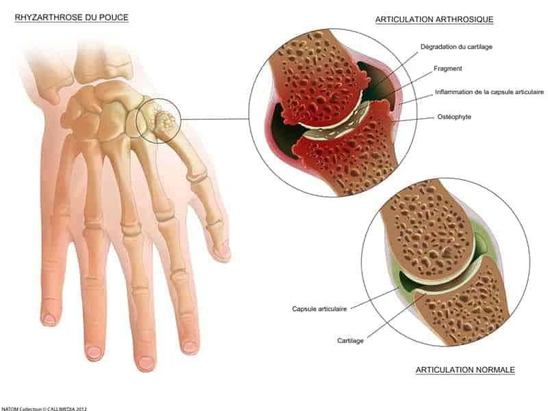 prothese trapezometacarpienne rhizarthrose pouce arthrose du pouce rhizarthrose bilaterale dr laurent thomsen chirurgien main paris chirurgien poignet paris clinique drouot 1