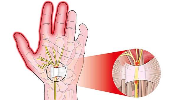 syndrome du canal carpien symptome canal carpien main docteur laurent thomsen chirurgien main paris chirurgien poignet paris clinique drouot 1
