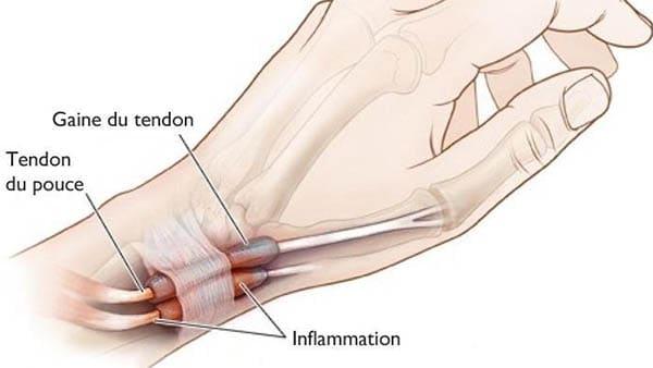 tenosynovite de de quervain traitement tendinite de quervain traitement docteur laurent thomsen chirurgien main paris chirurgien poignet paris clinique drouot 1