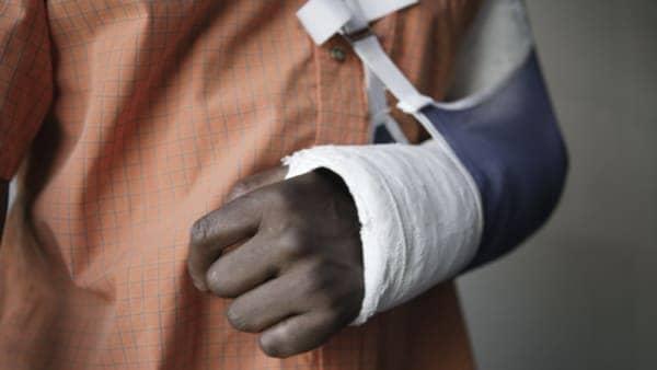 fracture du scaphoide traitement fracture du poignet docteur thomsen chirurgien du poignet paris 9 clinique drouot