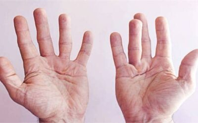 Maladie de Dupuytren : maladie aux causes multiples