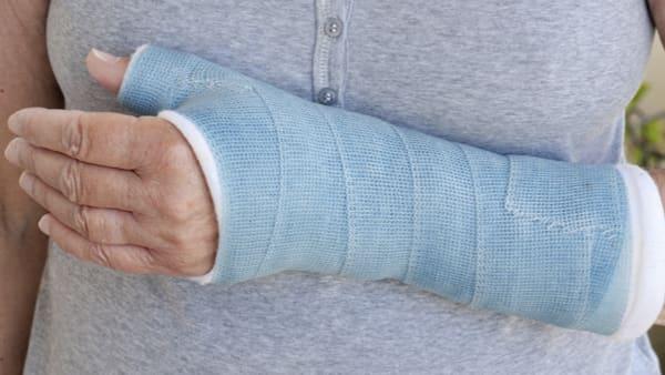 scaphoide fracture osteosynthese fracture poignet docteur laurent thomsen clinique drouot paris 9