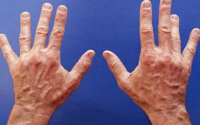 Qu'est-ce que l'aponévrotomie percutanée à l'aiguille ?