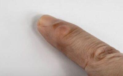 Kyste mucoide doigt traitement