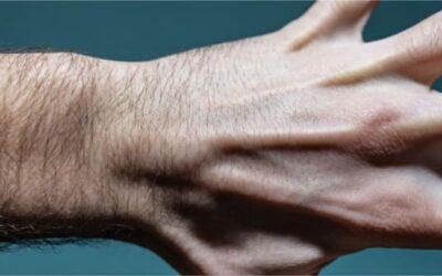 Le kyste synovial au poignet est-il une maladie professionnelle ?