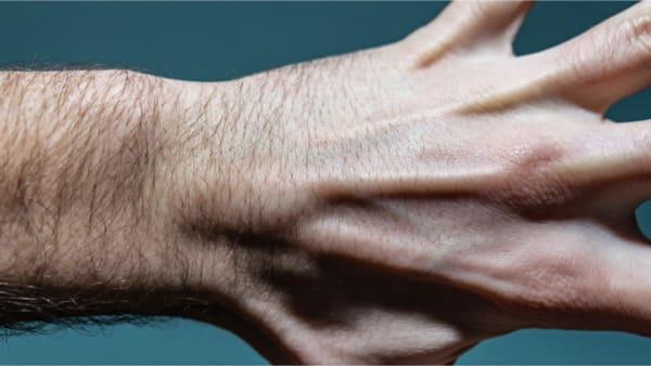 kyste synovial au poignet maladie professionnelle dr laurent thomsen chirurgien main paris chirurgien poignet paris clinique drouot