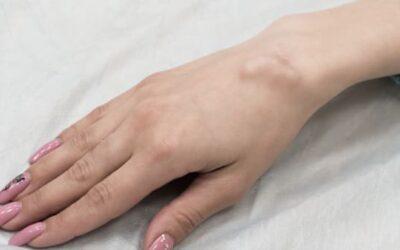 Opération kyste synovial du poignet