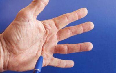 Maladie de Dupuytren et invalidité : maladie professionnelle ?